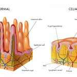 Intestin normal versus intestin afectat de celiachie